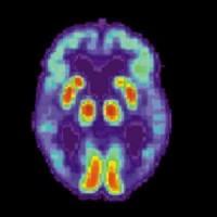 Новая надежда в лечении болезни Альцгеймера