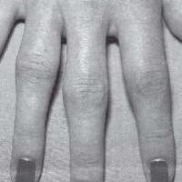 Профилактика заболеваний суставов